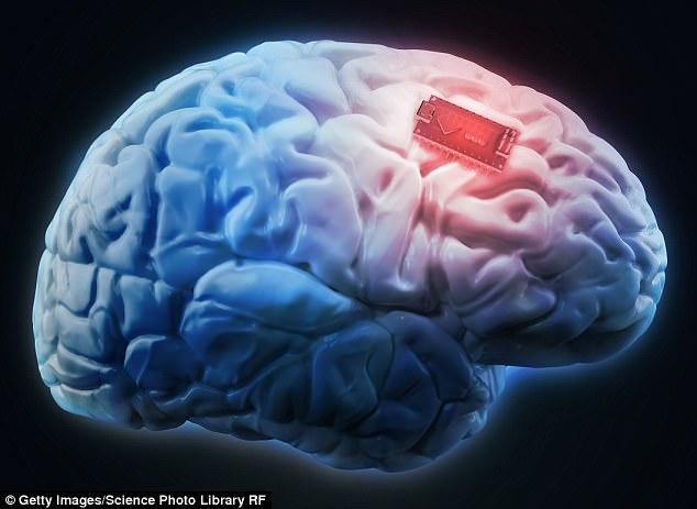 马斯克创办新公司 欲向人脑植入电极治疗脑部顽疾
