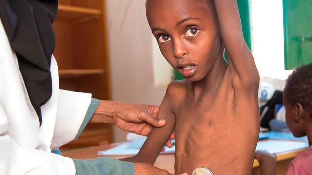 肚子瘪成漏气皮球 东非1600万人恐饿死