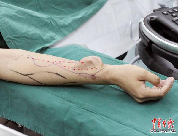 奇迹!西安交大教授实现手臂长耳朵成功移植