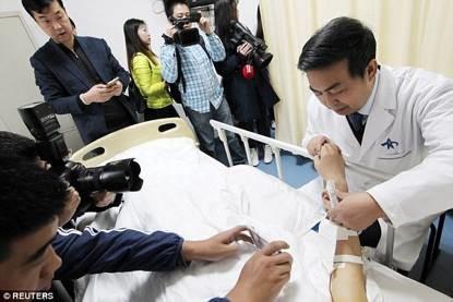 """全球首例!中国这项医学奇迹让老外们惊呼""""太神奇""""!"""