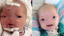 爱尔兰婴儿患上罕见无鼻症 没有鼻子像外星人