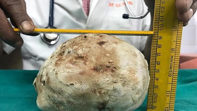 印度男子腹痛入院 膀胱取出1.5公斤巨型结石