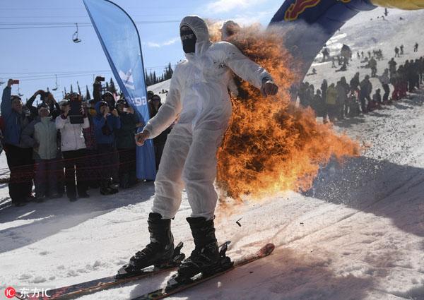 不值得!俄男子为争奖品点燃滑雪服装致烧伤