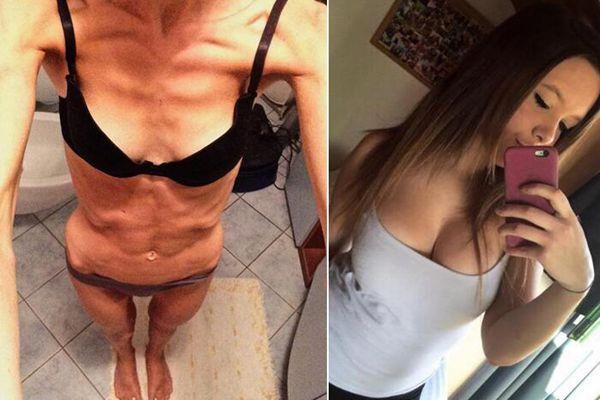 意19岁女孩与男友分手深受打击 患厌食症骨瘦如柴