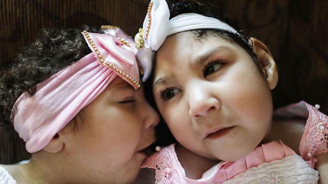 巴西小脑症畸形双胞胎庆一周岁生日