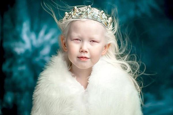 俄白化病女孩美似天使 多家模特公司抛出橄榄枝