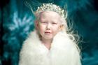 俄8岁白化病女孩美似天使