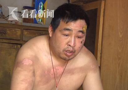 丈夫被妻子怀疑出轨遭开水烫伤:又没把女人带回家