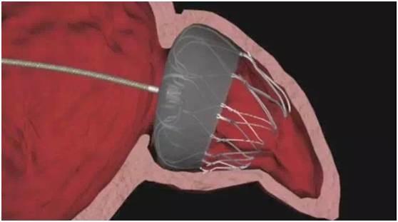 美国顶尖心脏医生告诉你:世界上顶级的三种心脏微创手术,转给有需要的人看!