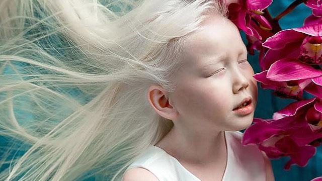 西伯利亚白雪公主!8岁白化病女孩有个模特梦