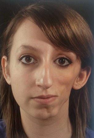 美10岁女孩患罕见疾病脸部塌陷 家人为其筹钱