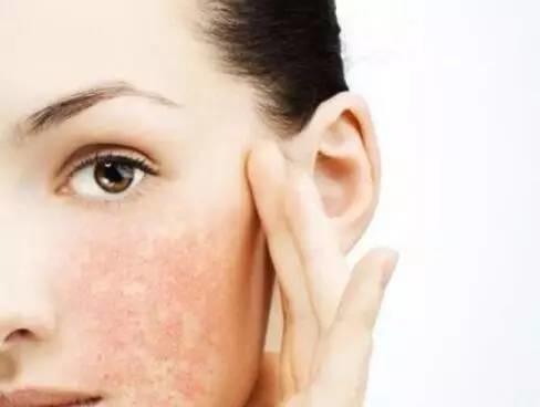 """怀疑自己是""""敏感肌""""?让皮肤科专家来告诉你正确答案"""