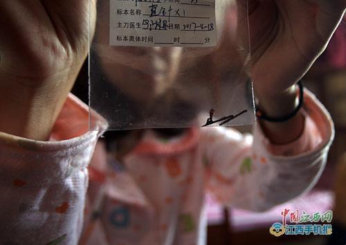 """女子体内""""藏""""缝衣针23年后手术取出 生锈断两截"""