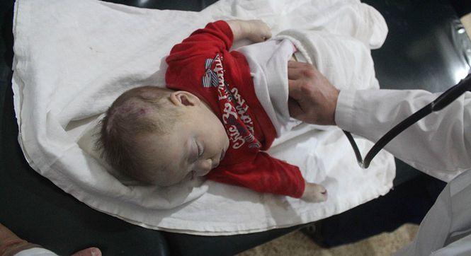 叙利亚大马士革遭空袭 婴儿在医院接受治疗