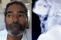 印度男子體內被插入75根針 卻不知原因
