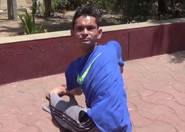 """真实""""橡皮人""""!印度小伙头可旋转180度"""