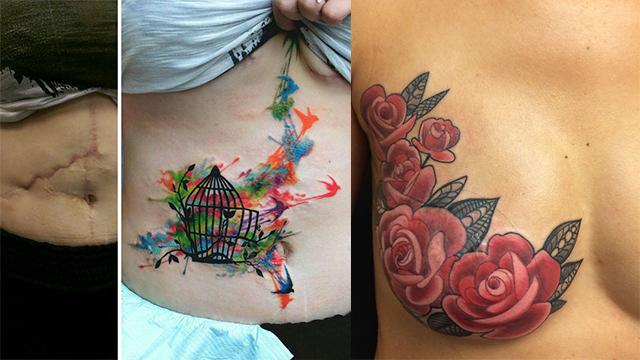 她们用纹身把丑陋的伤疤变成艺术!
