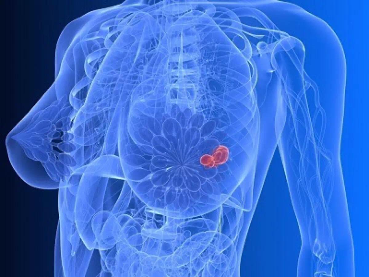 乳腺癌防治 运动、饮食和情感关怀一样都不能少