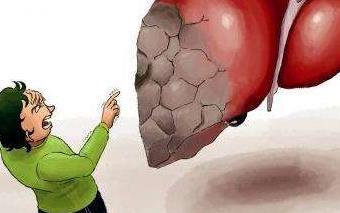 教你检查肝脏是否有毒素