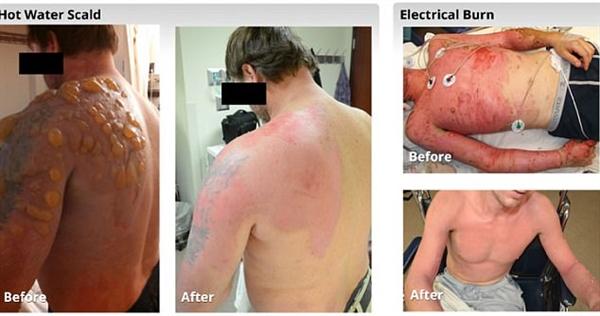 难以置信的神器:人皮肤被烧伤4天长出健康皮肤