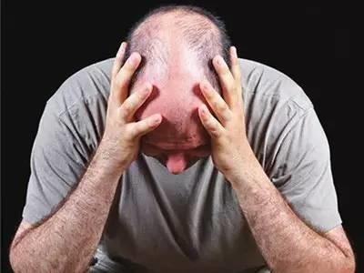 掉头发超过这个数就是病!6招拯救你不断后退的发际线