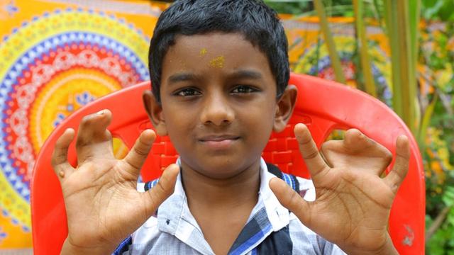 印度一家庭140人天生并指 自称受诅咒