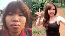 越南版凤姐整形逆袭闪婚富二代