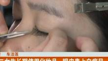 大二女生长期使用化妆品  眼皮患上白癜风