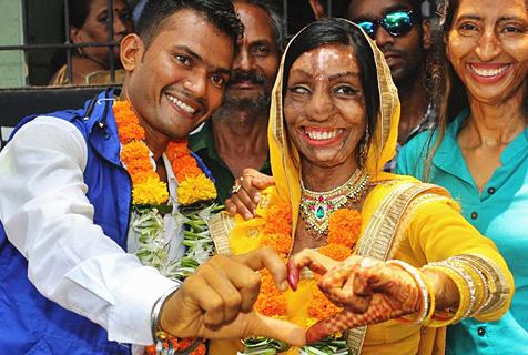 真爱无言!印度泼酸毁容女与男友完婚