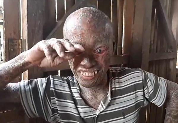 菲律宾一男子患罕见皮肤病被视作邪恶鬼怪