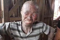 菲律宾男子患病被视作邪恶鬼怪