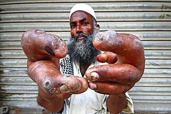 巴基斯坦70岁男子因双手巨大失业 沿街乞讨遭奚落