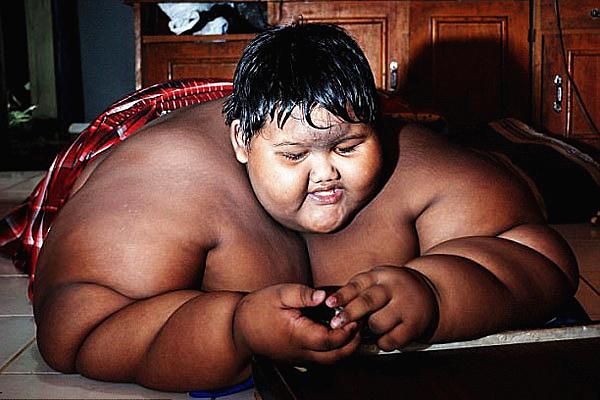 世界最胖男孩重380斤 接受缩胃手术有望减掉200斤