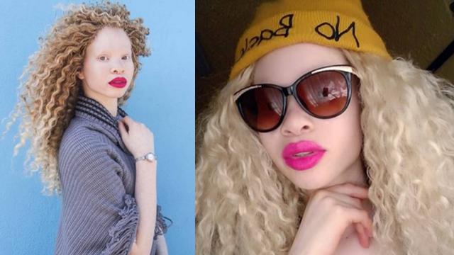 南非女孩患白化病被称幽灵 如今逆袭成模特
