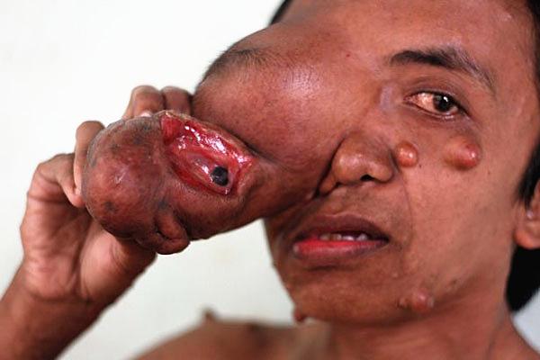 """印尼男子脸部长巨瘤如""""象鼻"""" 5次手术仍无法根除"""