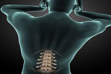"""""""体内牵引器""""让腰突出患者告别疼痛"""
