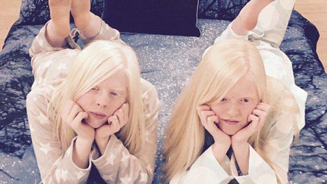 白化病女孩网上晒时尚照 展现另类独特魅力