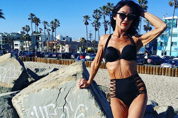 美26岁女子患怪病不惧松弛皮肤勇做模特