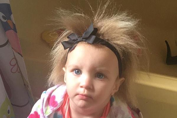 美国一萌宝因患怪病头发竖直如稻草