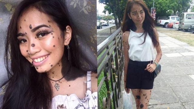 马来西亚女子全身长满斑点 勇敢参选环球小姐