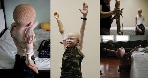 坦桑尼亚被致残白化病儿童装义肢