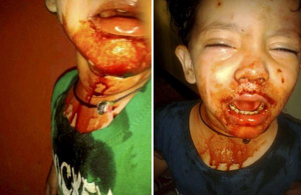 印度1名3岁女童患罕见病口耳目每日出血