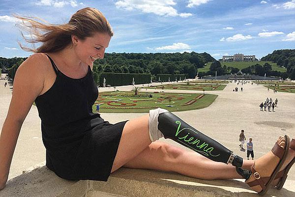 美截肢女子环游欧洲 将旅游地名写假肢上