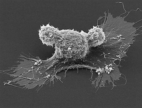 美或批准首个癌症基因疗法