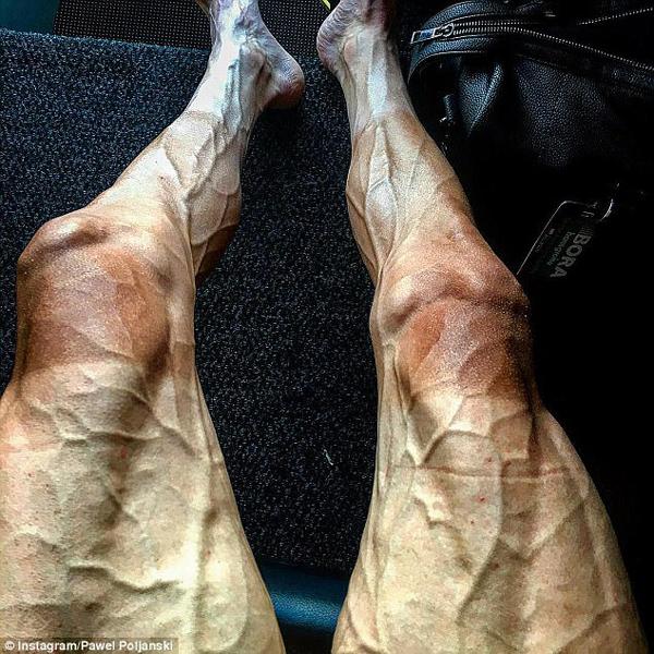 自行车运动员晒比赛后的双腿 血管异常凸起