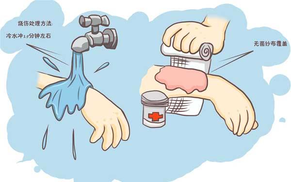 意外烫伤:冷水冲洗患处不能少于10分钟