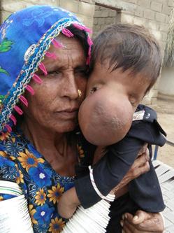 巴基斯坦婴儿患怪病鼻子大如板球