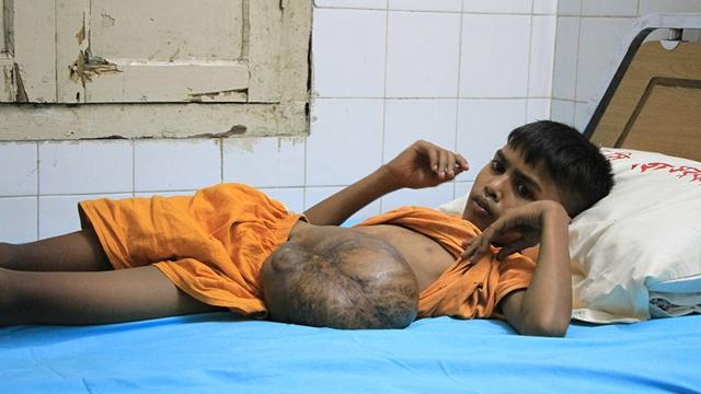 """孟加拉国13岁男童从出生开始抗癌 腹部""""挂""""巨型肿瘤"""