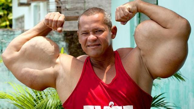 肌肉男注射可致命混合物 手臂畸形粗壮