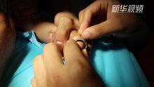 幼童手指被卡钢圈 消防官兵巧救援